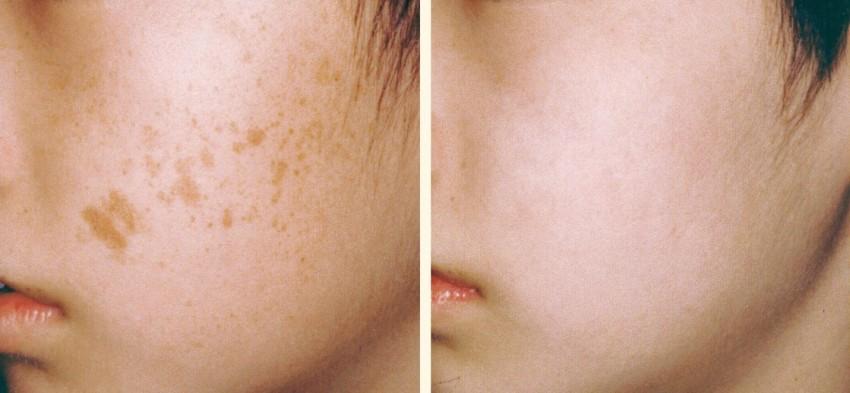 Как удалить пятно на лице от рода фото
