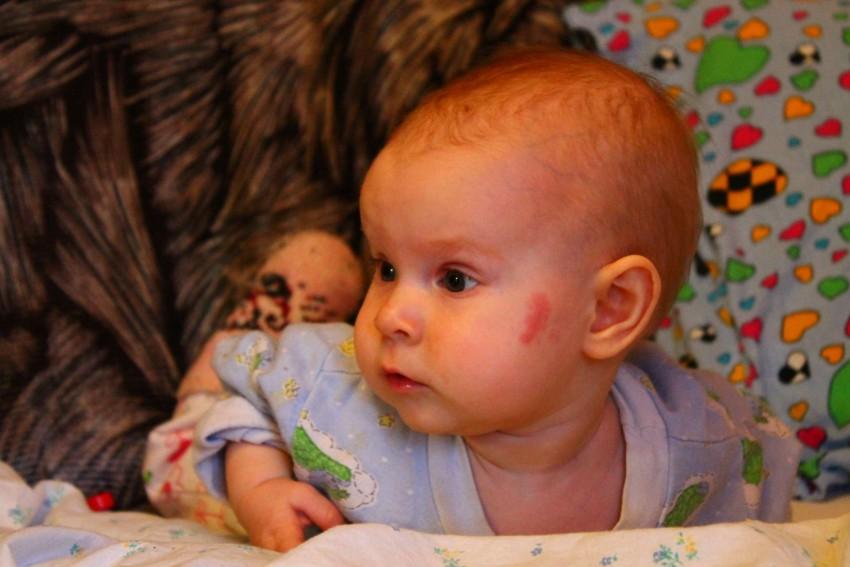 Аллергия у новорожденных фото и описание
