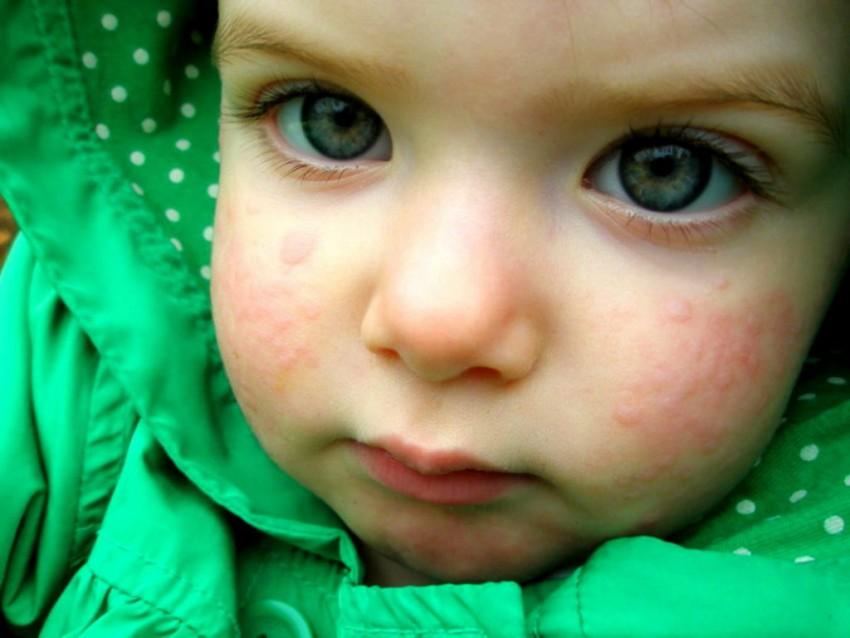 Кожа новорожденного как выглядит аллергия