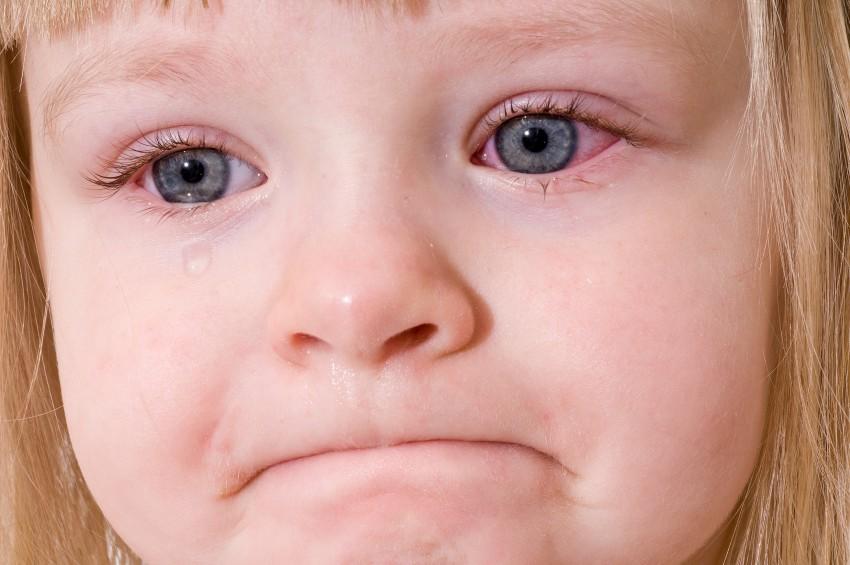 Хронический конъюнктивит у ребенка фото